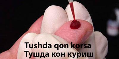 Tushda qon korsa – Тушда кон куриш