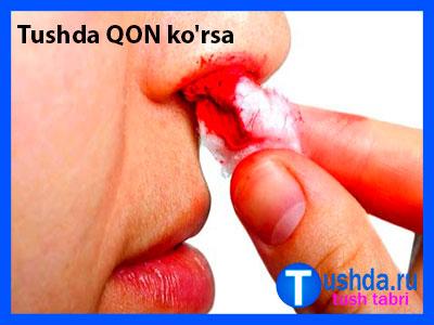 Tushda QON ko'rsa